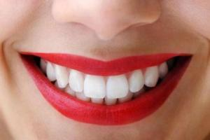 image courtesy:  dentistinnewportbeach.wordpress.com