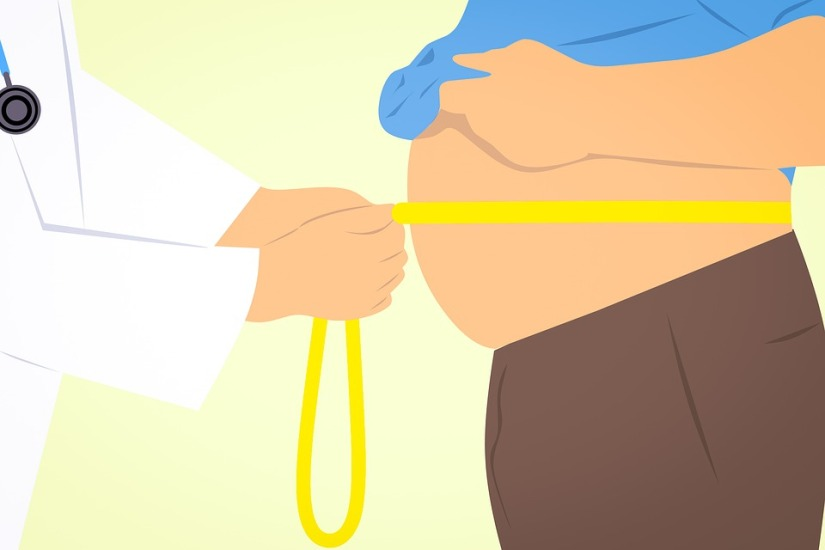What You Must Know About Bariatric Surgery